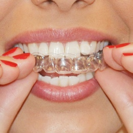 Genkent 2 Pairs Thermoforming Dental Ochraniacz Wybielanie Zębów Wybielanie Zębów Wybielacza Usta Straż Care Oral Hygiene